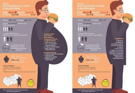 Magyar Elhízástudományi Társaság: meddig lesz hazánk az elhízás egyik európai éllovasa?